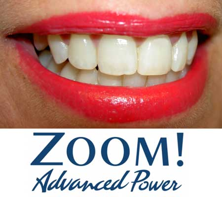 Zoom! Advanced Power Teeth Whitening